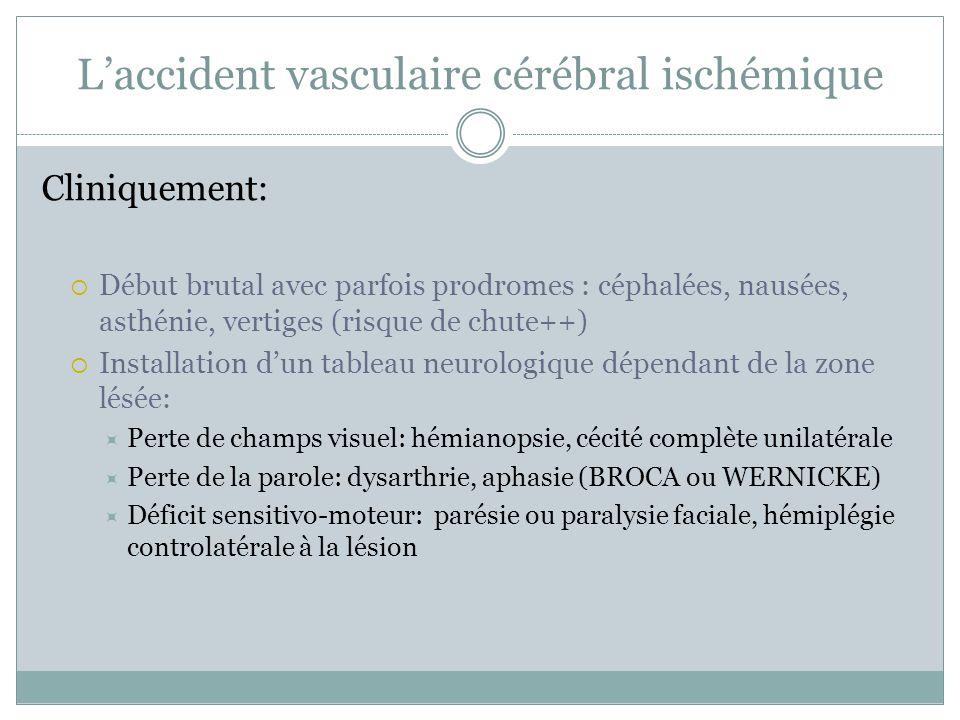 L'accident vasculaire cérébral ischémique