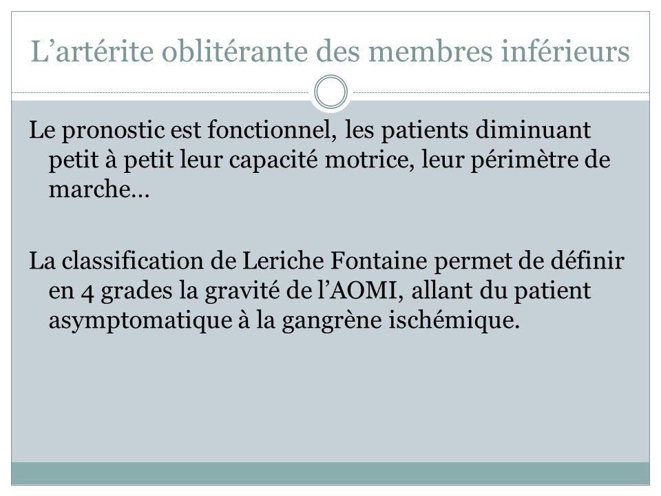 L'artérite oblitérante des membres inférieurs