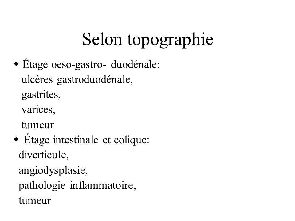 Selon topographie  Étage oeso-gastro- duodénale: