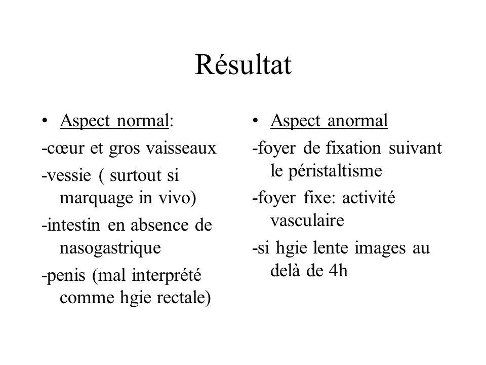 Résultat Aspect normal: -cœur et gros vaisseaux