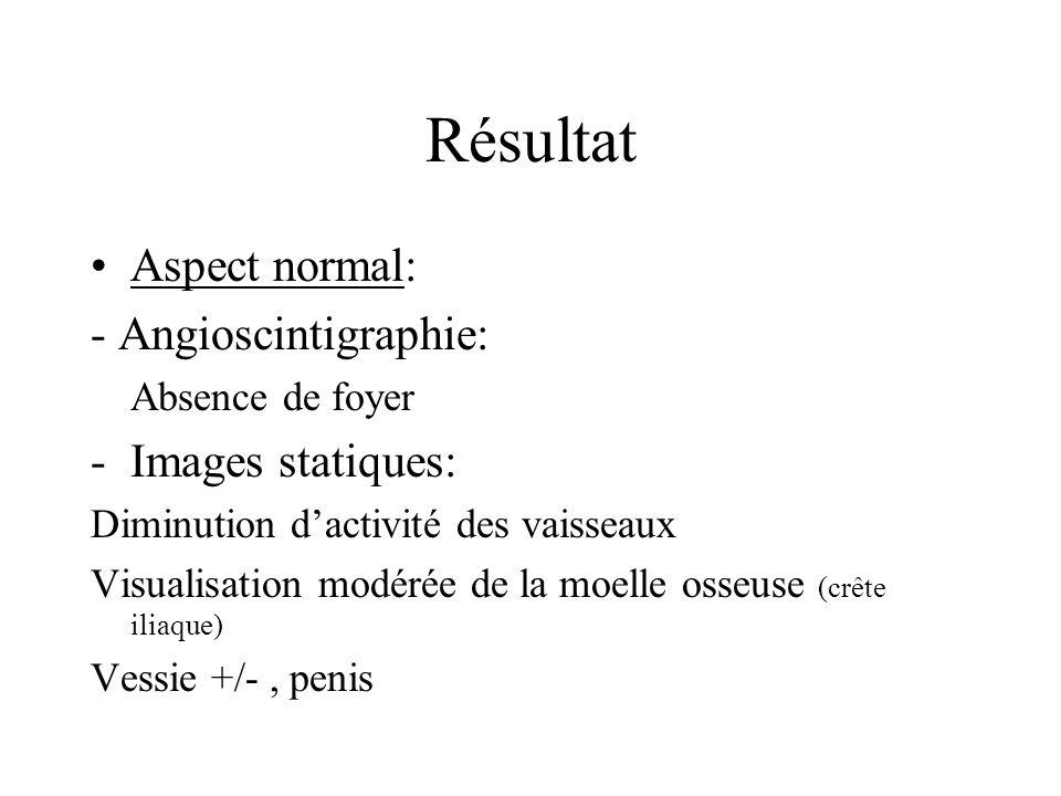 Résultat Aspect normal: - Angioscintigraphie: Images statiques: