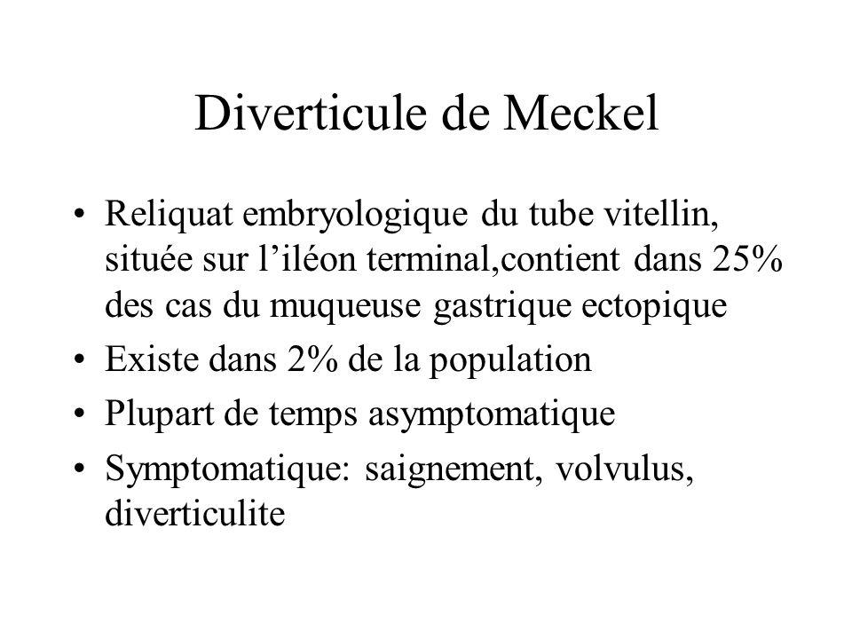 Diverticule de Meckel Reliquat embryologique du tube vitellin, située sur l'iléon terminal,contient dans 25% des cas du muqueuse gastrique ectopique.