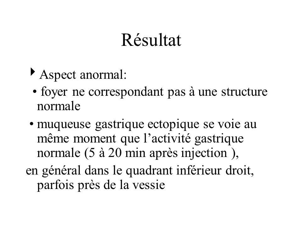 Résultat Aspect anormal: