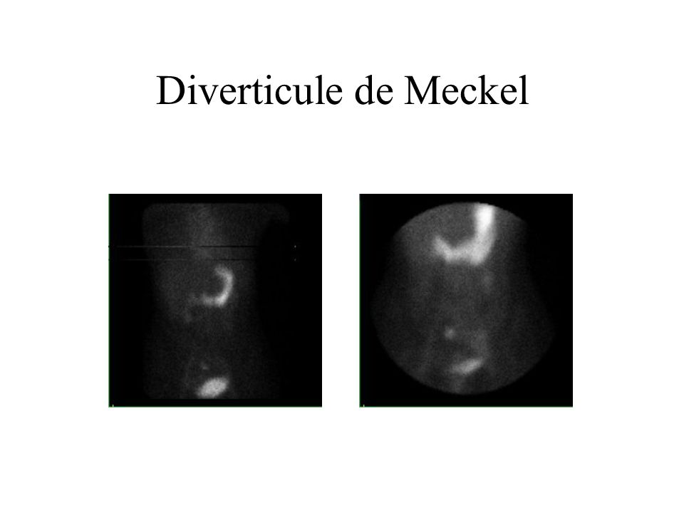 Diverticule de Meckel