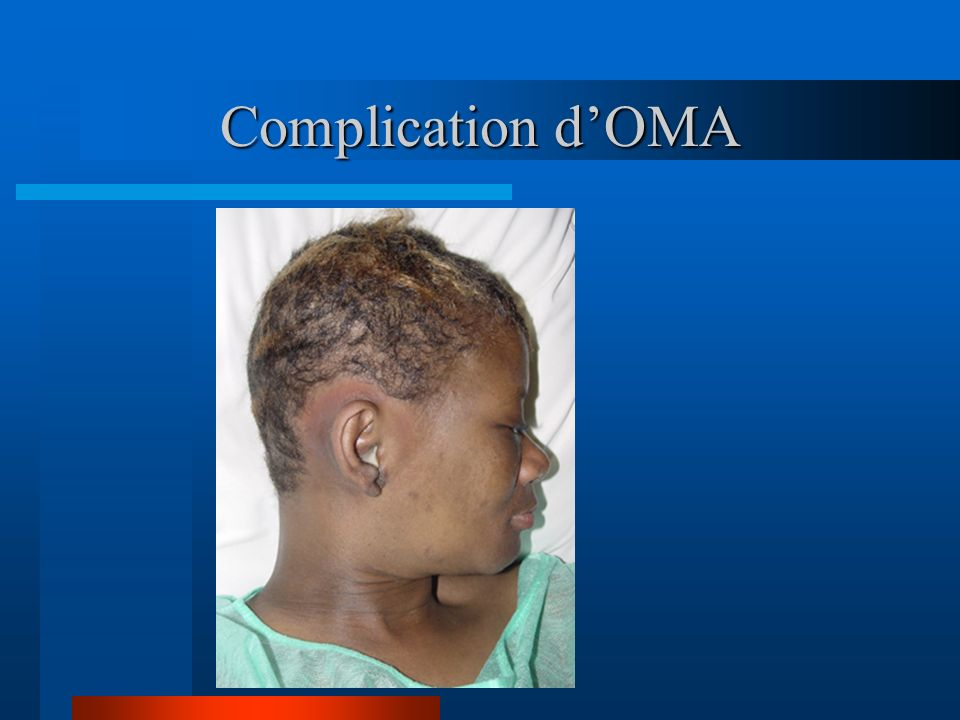 Complication d'OMA