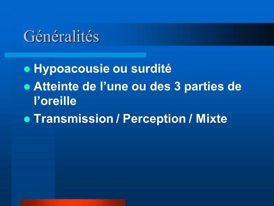 Généralités Hypoacousie ou surdité