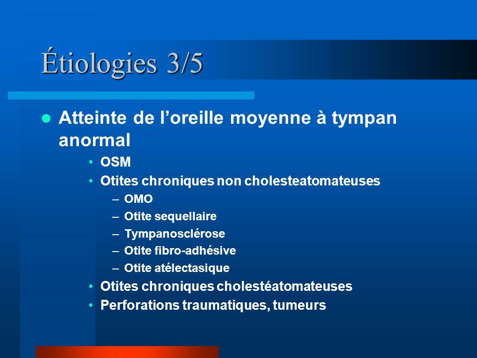 Étiologies 3/5 Atteinte de l'oreille moyenne à tympan anormal OSM