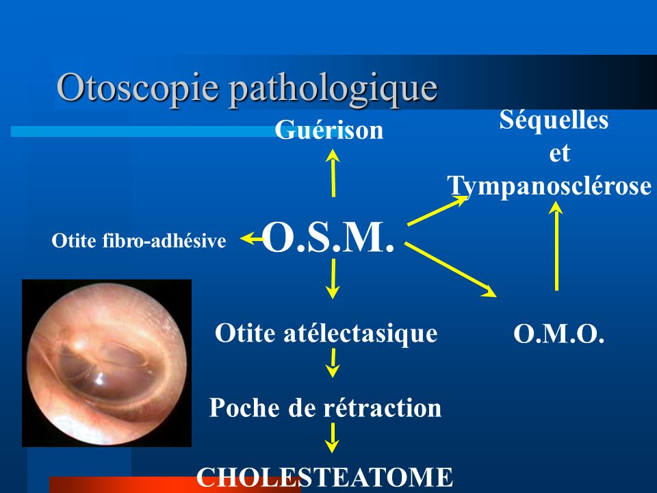 Otoscopie pathologique