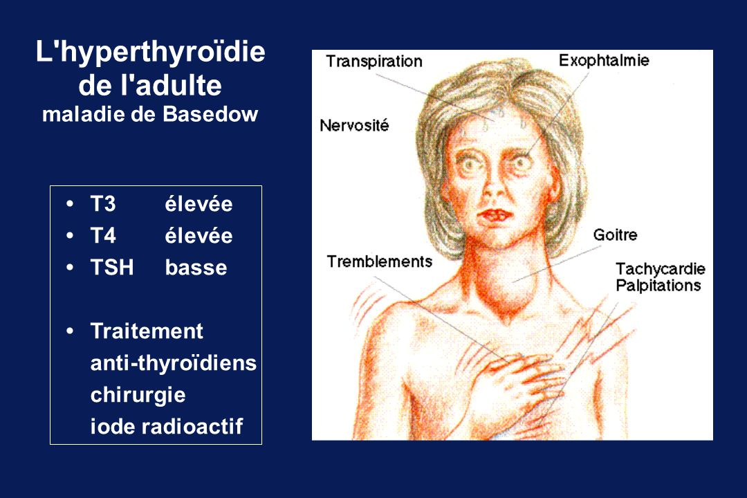 L hyperthyroïdie de l adulte maladie de Basedow