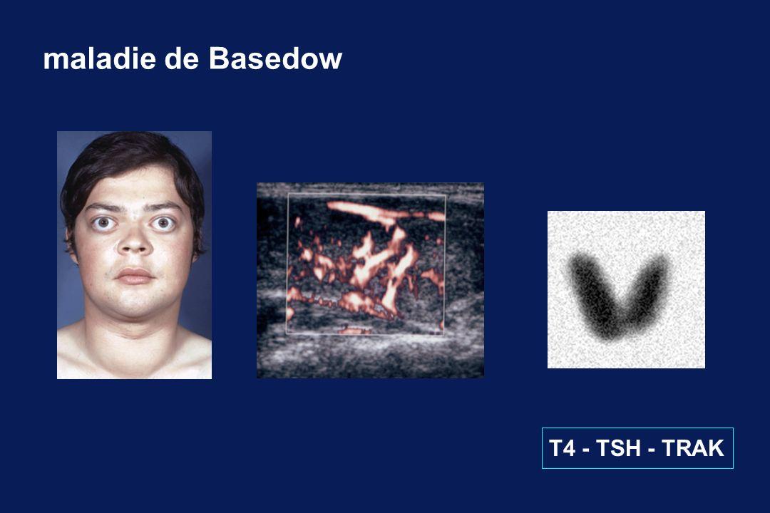 maladie de Basedow T4 - TSH - TRAK