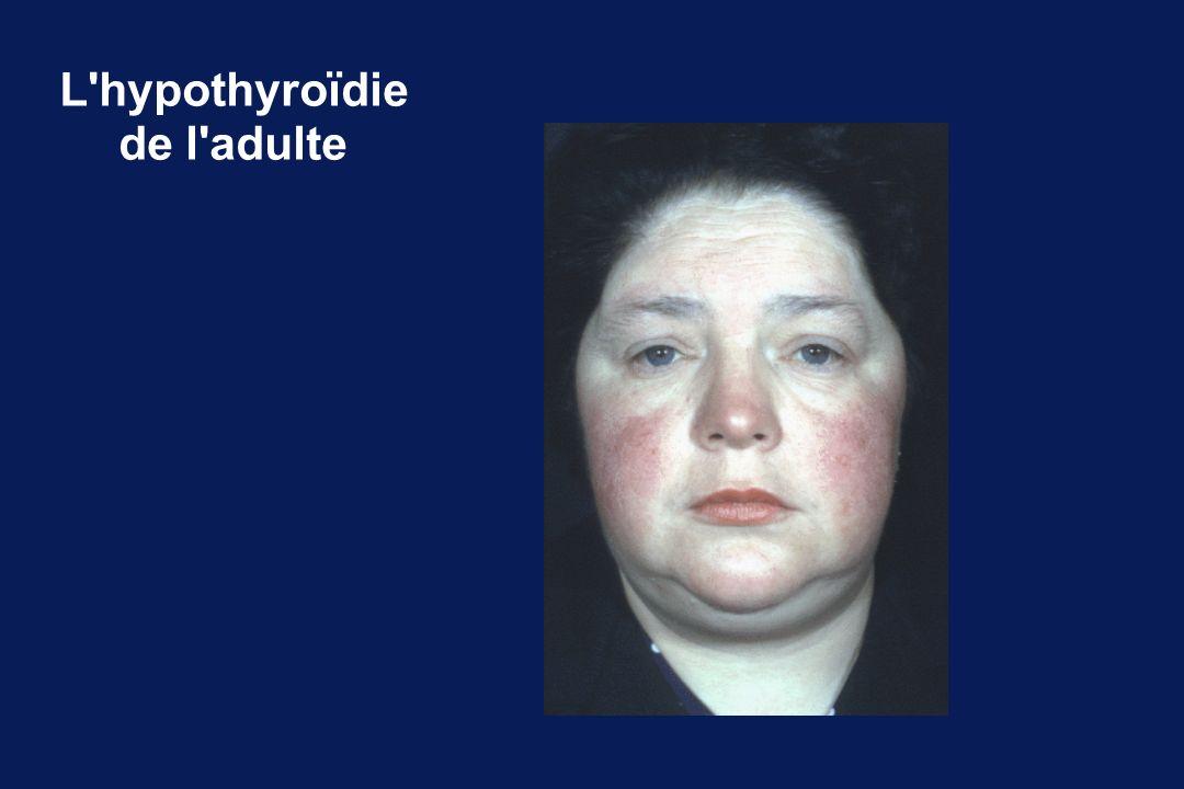 L hypothyroïdie de l adulte