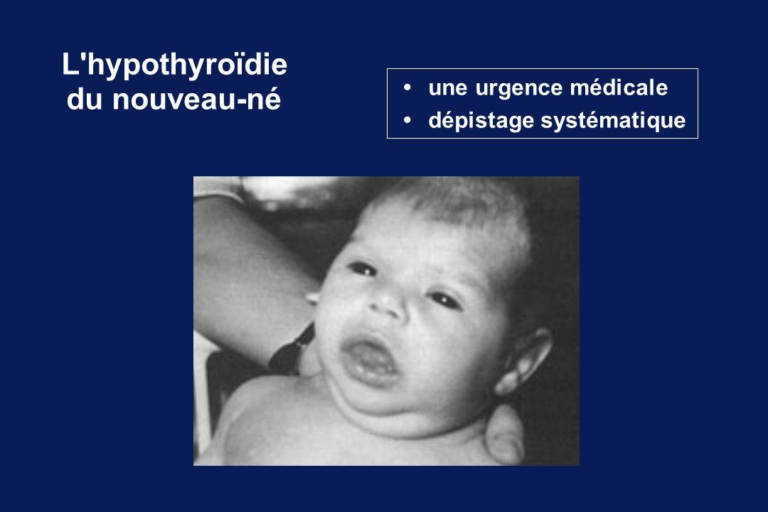 L hypothyroïdie du nouveau-né