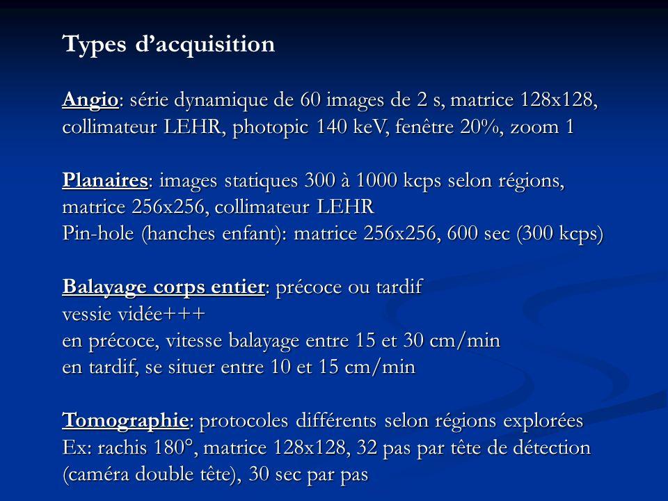 Types d'acquisitionAngio: série dynamique de 60 images de 2 s, matrice 128x128, collimateur LEHR, photopic 140 keV, fenêtre 20%, zoom 1.
