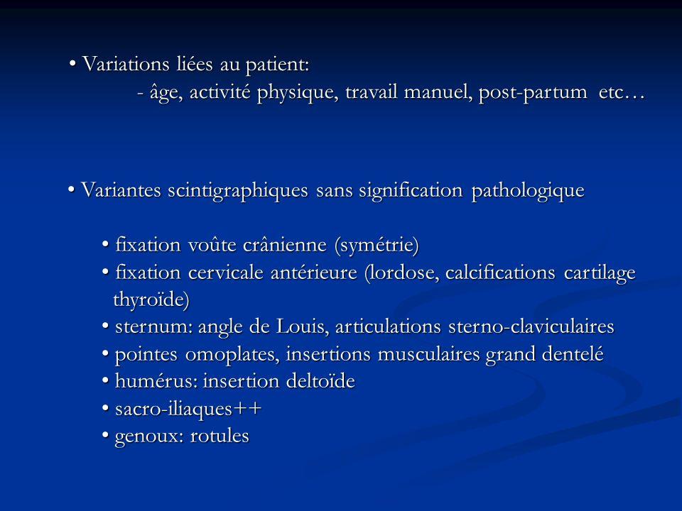 Variations liées au patient: