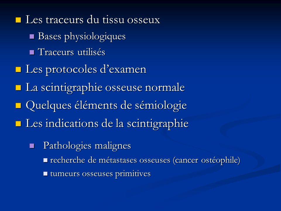 Les traceurs du tissu osseux