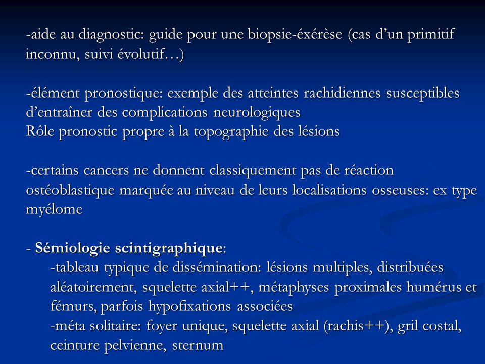 -aide au diagnostic: guide pour une biopsie-éxérèse (cas d'un primitif inconnu, suivi évolutif…)