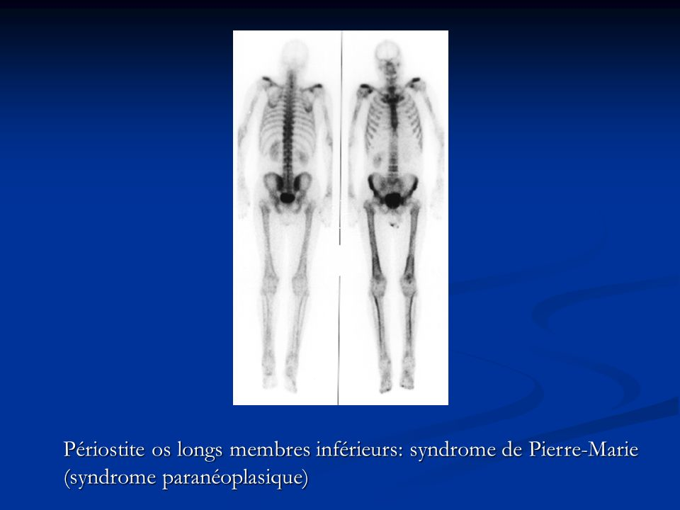 Périostite os longs membres inférieurs: syndrome de Pierre-Marie