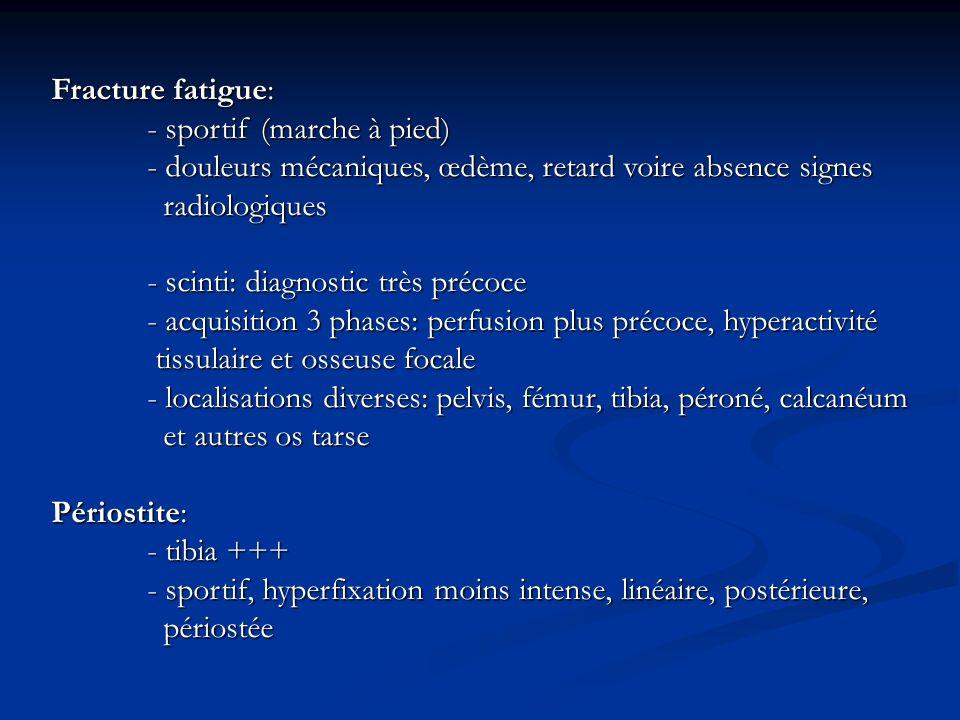 Fracture fatigue:- sportif (marche à pied) - douleurs mécaniques, œdème, retard voire absence signes.