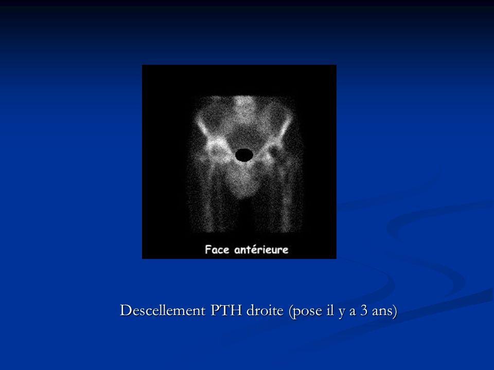 Descellement PTH droite (pose il y a 3 ans)