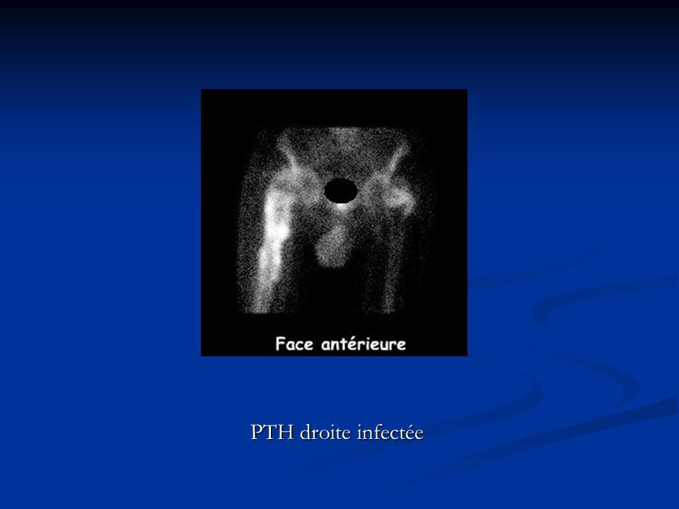 PTH droite infectée