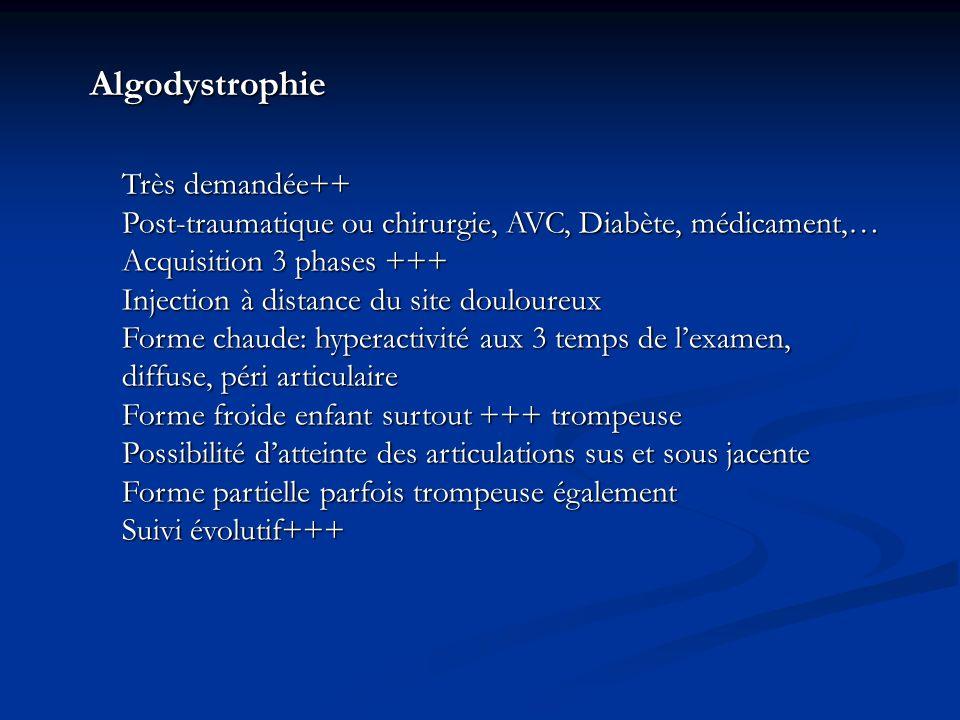 Algodystrophie Très demandée++