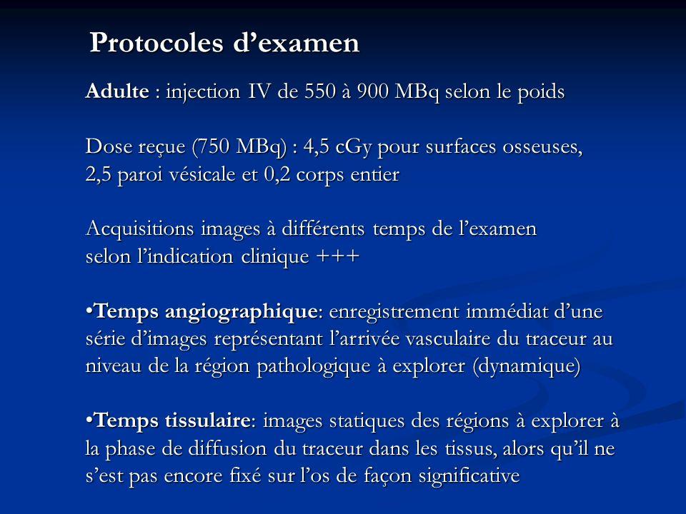 Protocoles d'examenAdulte : injection IV de 550 à 900 MBq selon le poids. Dose reçue (750 MBq) : 4,5 cGy pour surfaces osseuses,