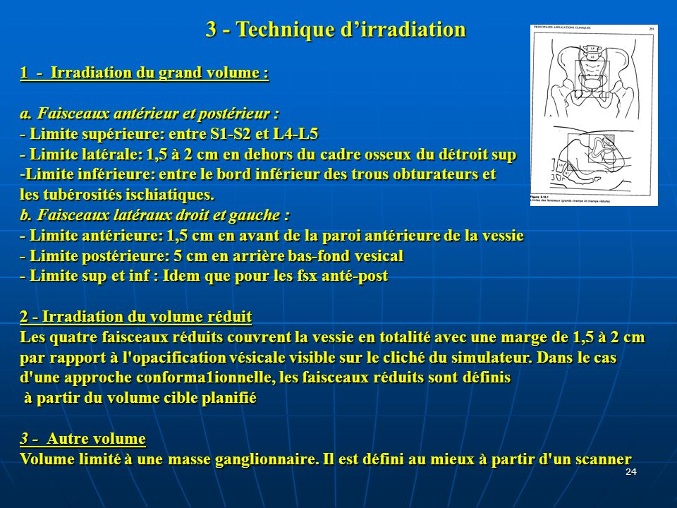3 - Technique d'irradiation