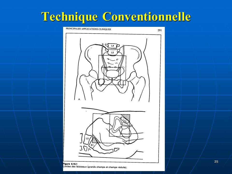 Technique Conventionnelle