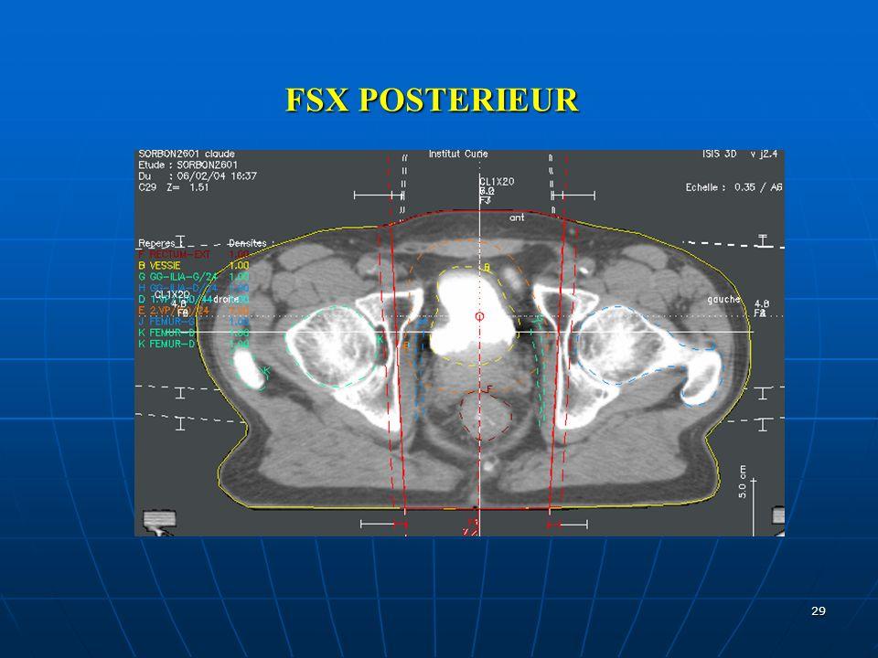 FSX POSTERIEUR