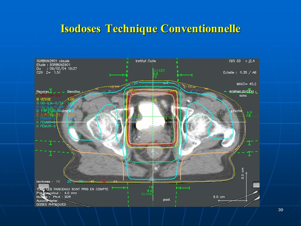 Isodoses Technique Conventionnelle