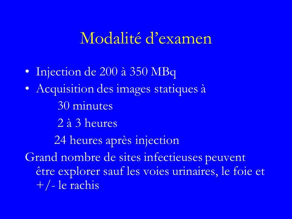 Modalité d'examen Injection de 200 à 350 MBq