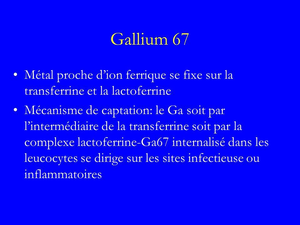 Gallium 67 Métal proche d'ion ferrique se fixe sur la transferrine et la lactoferrine.