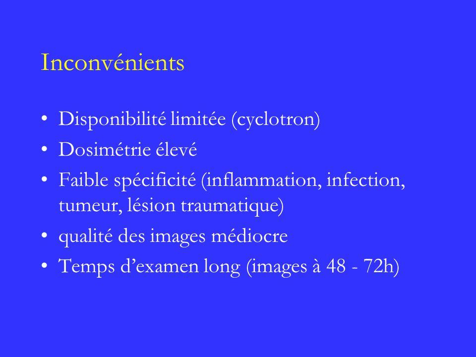 Inconvénients Disponibilité limitée (cyclotron) Dosimétrie élevé