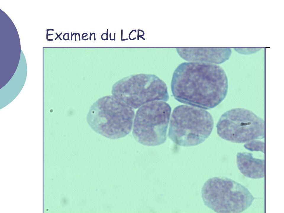 Examen du LCR On retrouvera 512 élements nuclées/µL et 3 GR/µL