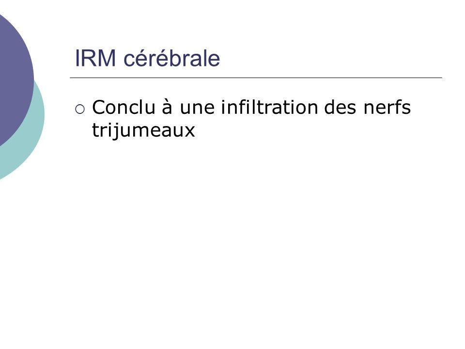 IRM cérébrale Conclu à une infiltration des nerfs trijumeaux