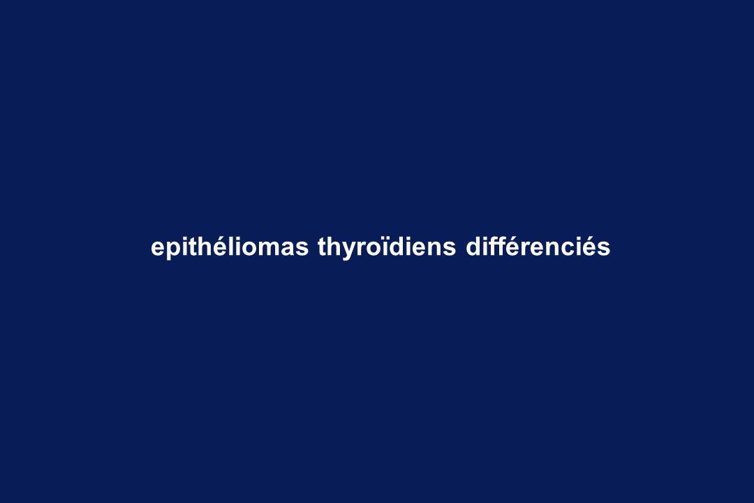 epithéliomas thyroïdiens différenciés