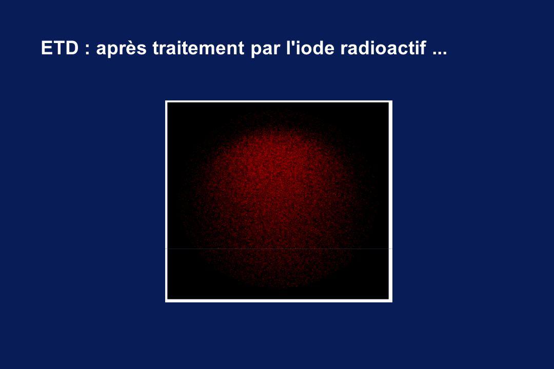 ETD : après traitement par l iode radioactif ...