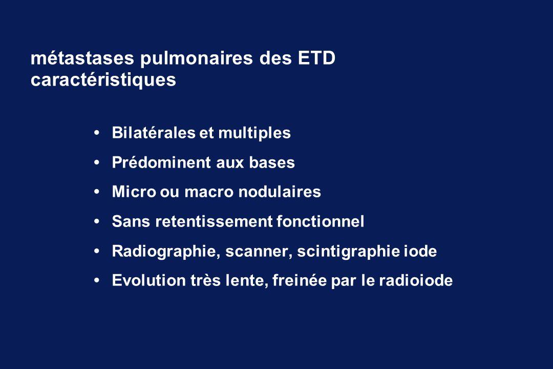 métastases pulmonaires des ETD caractéristiques