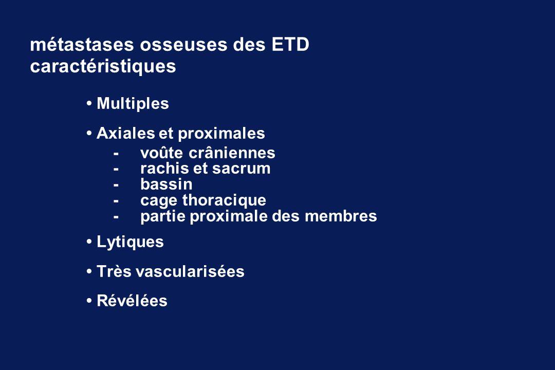 métastases osseuses des ETD caractéristiques