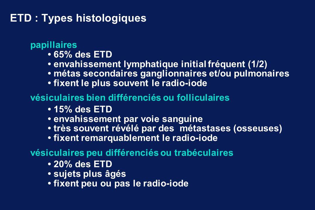 ETD : Types histologiques