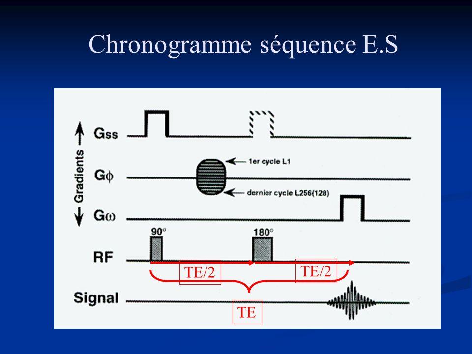 Chronogramme séquence E.S