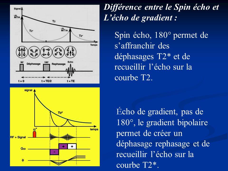 Différence entre le Spin écho et