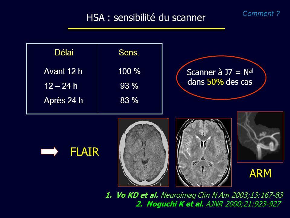 FLAIR ARM HSA : sensibilité du scanner Avant 12 h 12 – 24 h Après 24 h