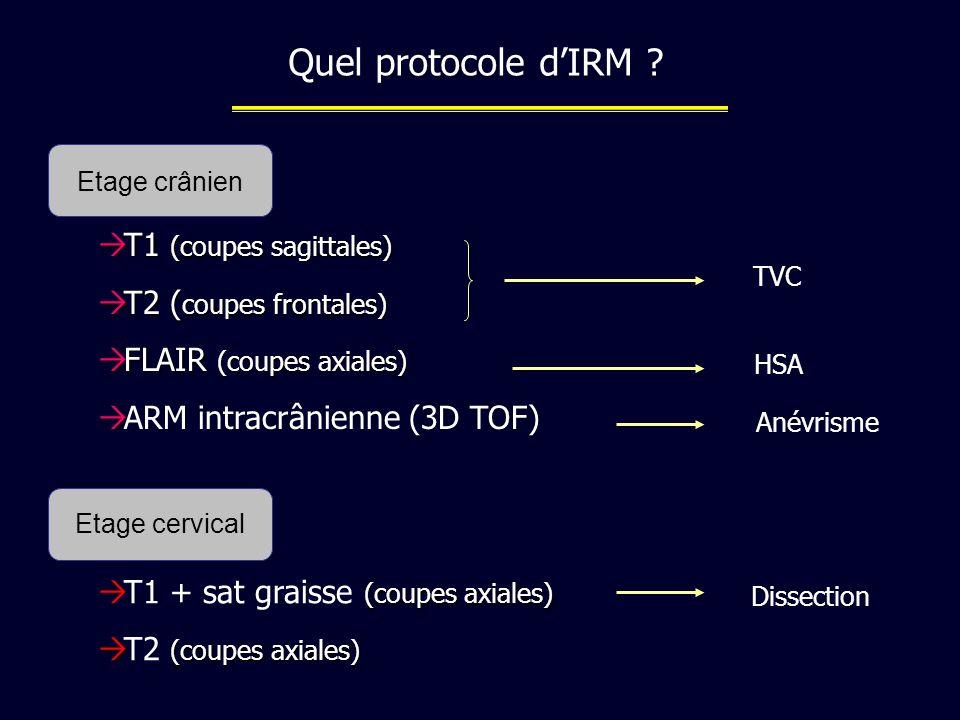 Quel protocole d'IRM T1 (coupes sagittales) T2 (coupes frontales)