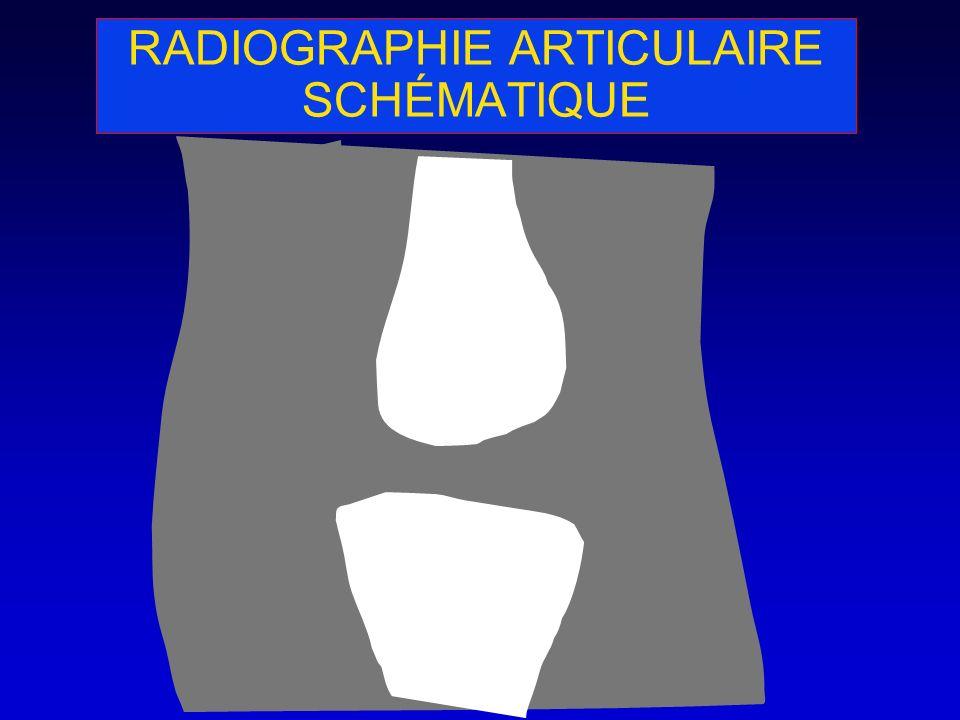 RADIOGRAPHIE ARTICULAIRE SCHÉMATIQUE