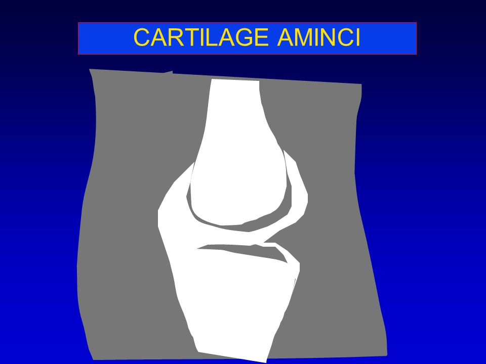 CARTILAGE AMINCI