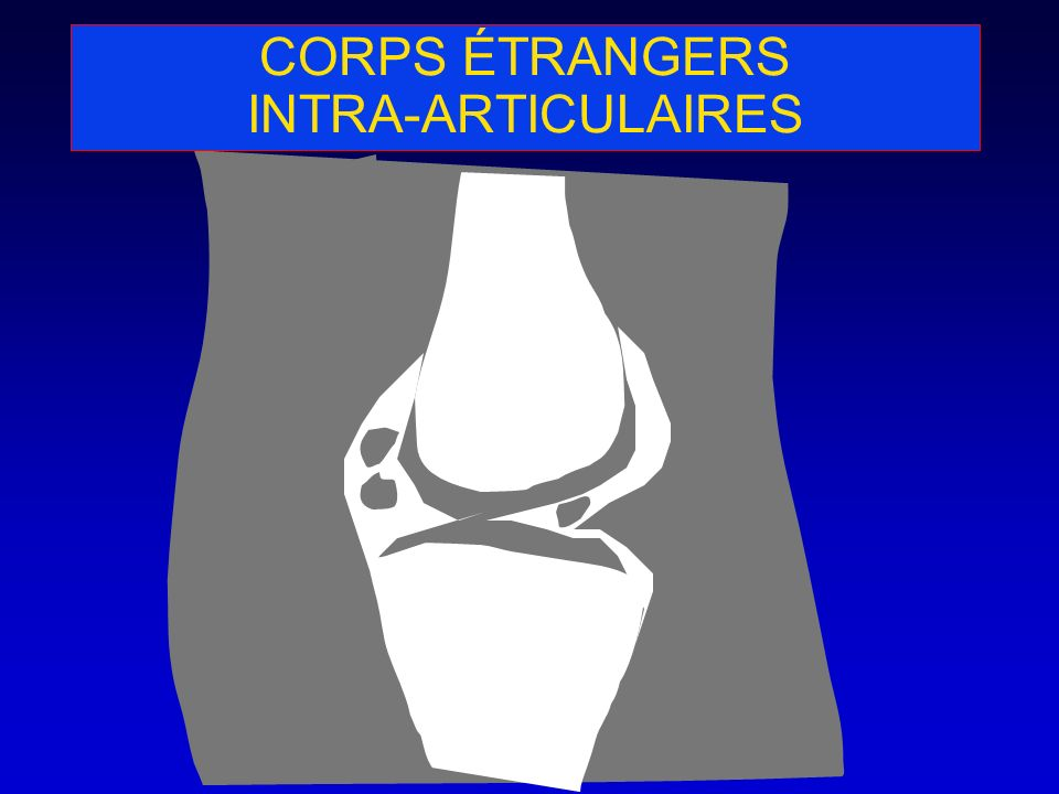 CORPS ÉTRANGERS INTRA-ARTICULAIRES