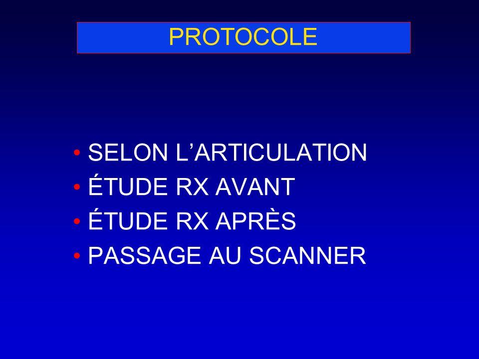 PROTOCOLE SELON L'ARTICULATION ÉTUDE RX AVANT ÉTUDE RX APRÈS PASSAGE AU SCANNER