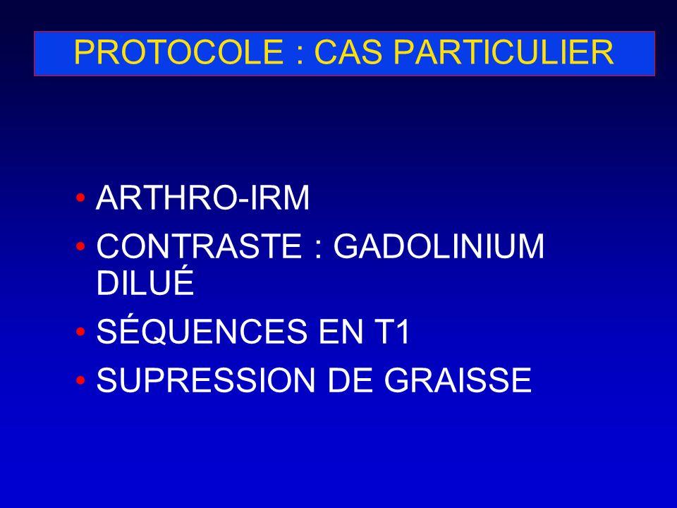 PROTOCOLE : CAS PARTICULIER