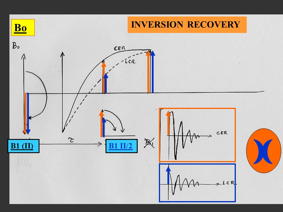 INVERSION RECOVERY Bo B1 (Π) B1 Π/2